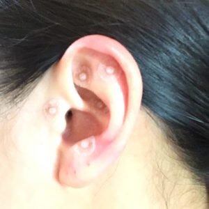 花粉症対策の耳鍼